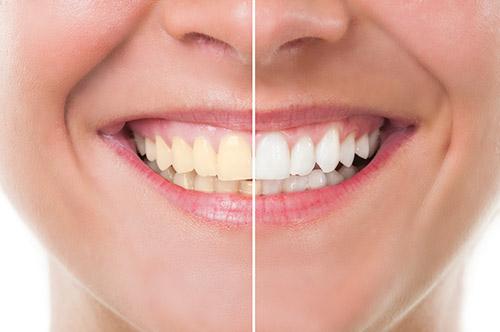 Professional Teeth Whitening Memphis, TN